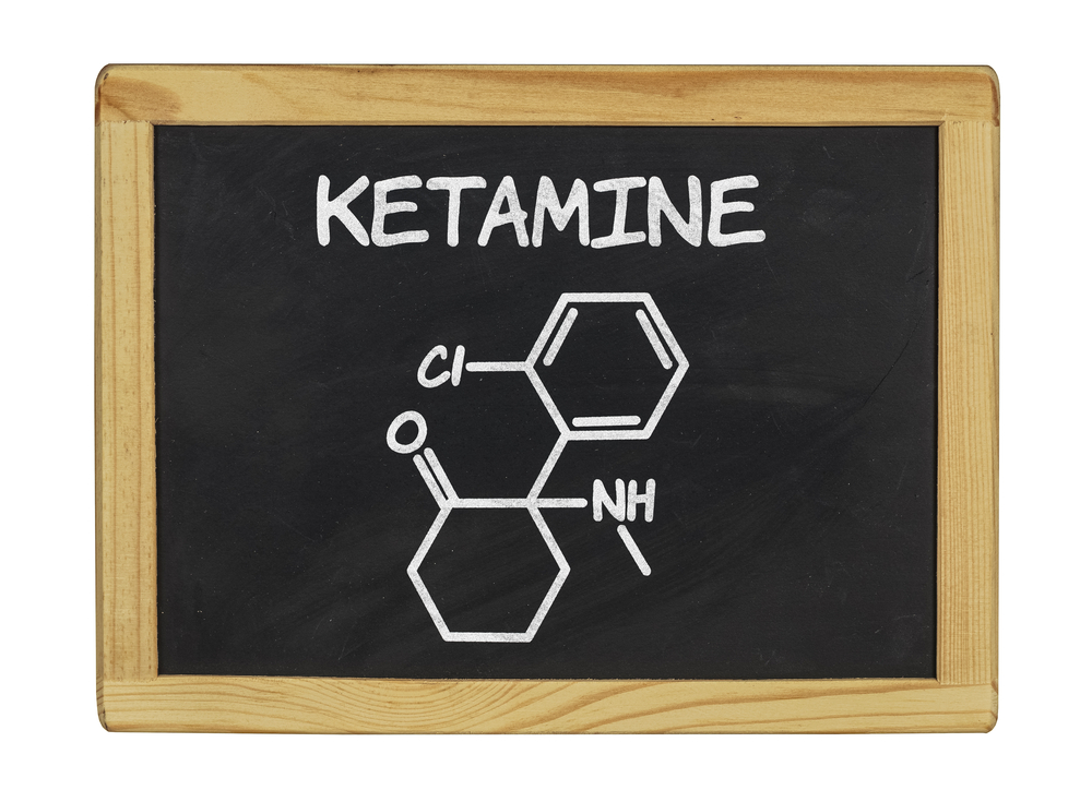 ketamine infusion treatment